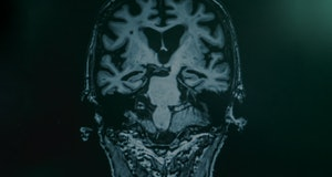 MRI of person with Alzheimer's disease