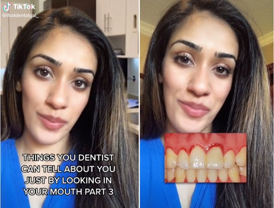 Sukhmani Pandher, a dental student at the University of Minnesota, has gone viral on TikTok after re...