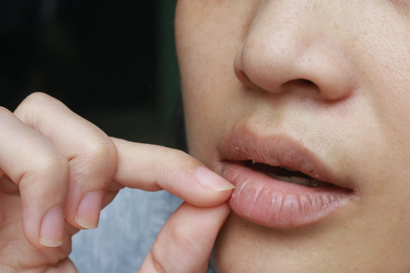 A woman picks at her lips, wondering how can I stop picking my lips.