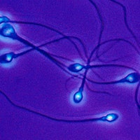 Can you inherit stress? Sperm study reveals link to mood