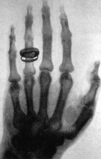 Many of us have received X-rays before, but one of the first people to receive one in history was Al...
