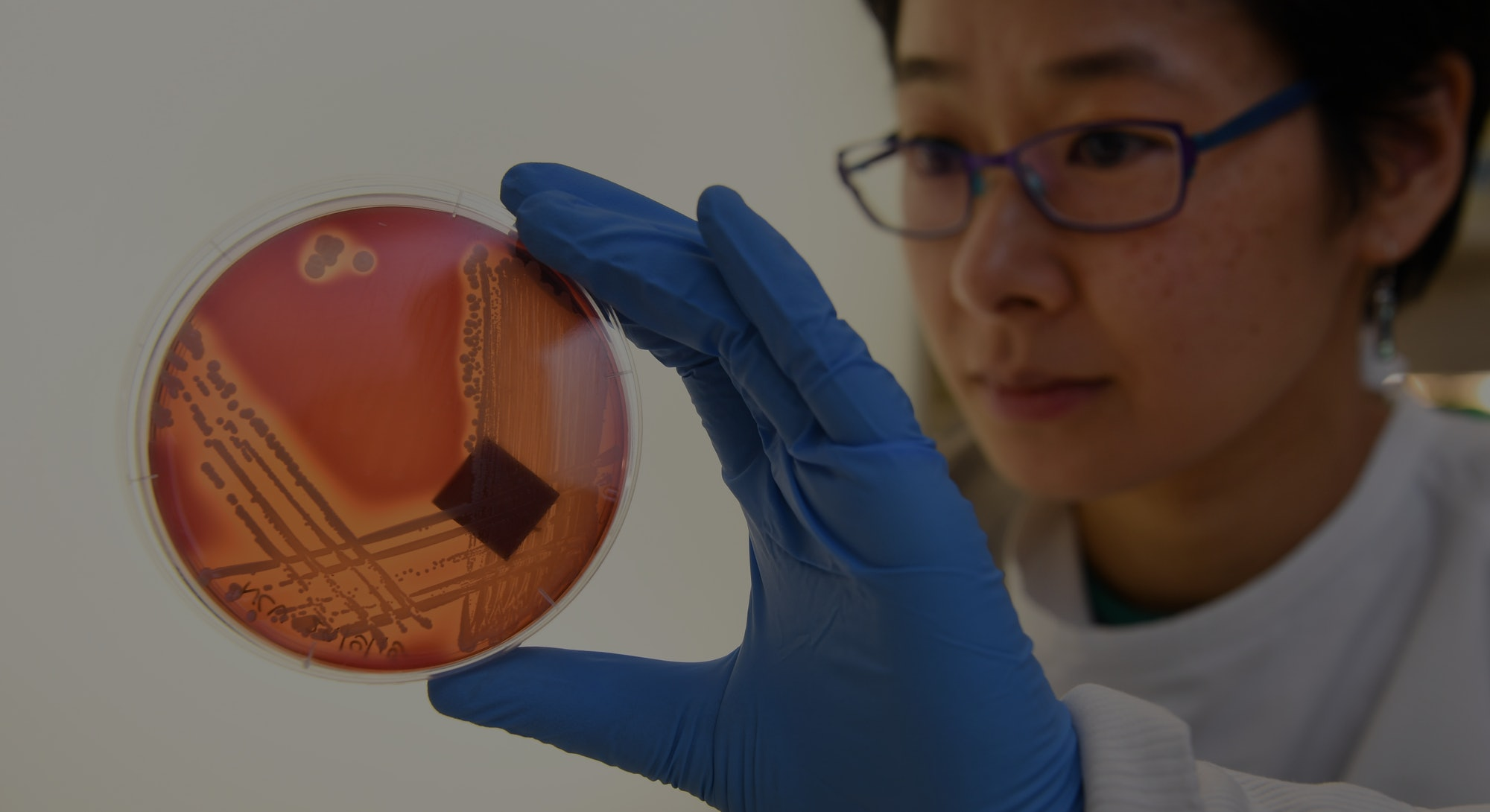 Jean Lee, a PhD student at Melbourne's Doherty Institute, inspects the superbug Staphylcocus epiderm...