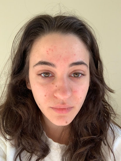 Isabella with acne before Carbon Star