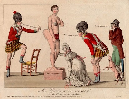 Baartman had a naturally occurring condition called 'steatopygia.'