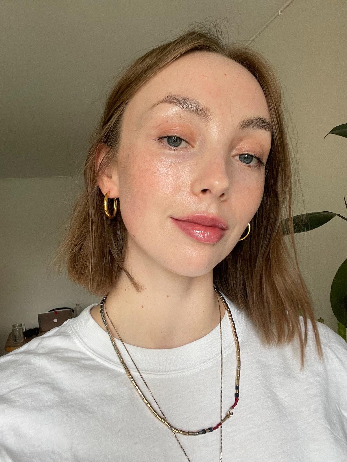 Erika after Platinum Lip Plump