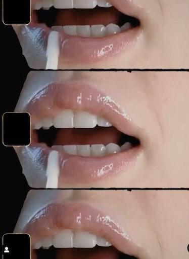 Dr. Lara Devgan Platinum Lip Plump