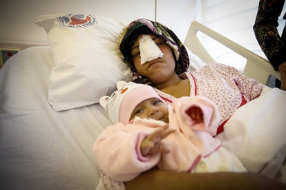 Reza Gul, 22, whose nose was cut off by her husband in Faryab Province of Afghanistan, holds her thr...