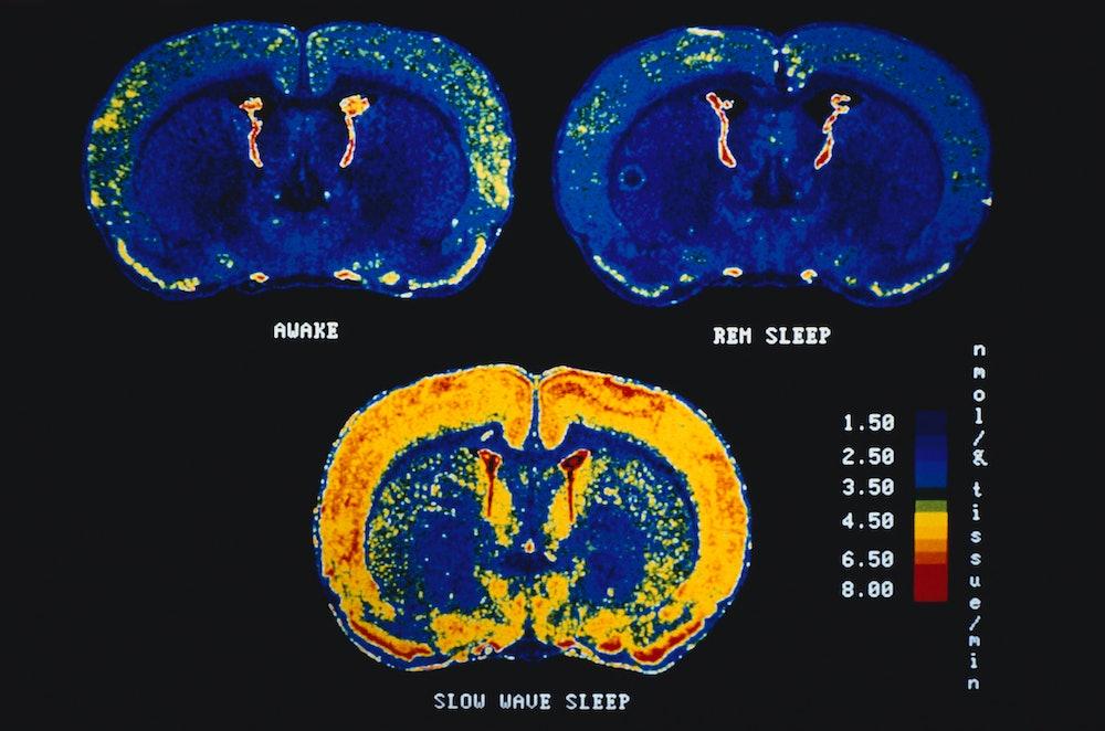 Sleep, brain scans