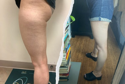 I tried QWO, the first injectable cellulite treatment.
