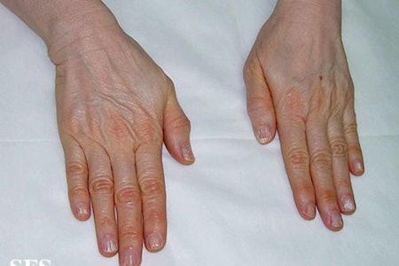 carotenemia example fingers