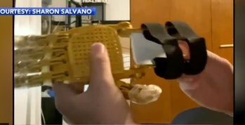 A look at the prosthetic hand