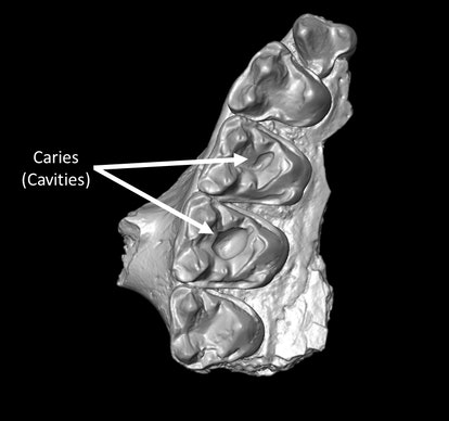 Part of the upper jaw from Microsyops latidens with two caries (cavities).