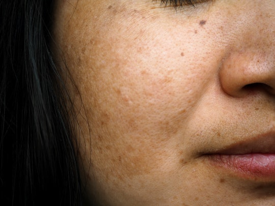 Melasma and freckle on woman face