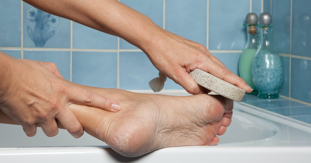 The 7 Best Callus Removers