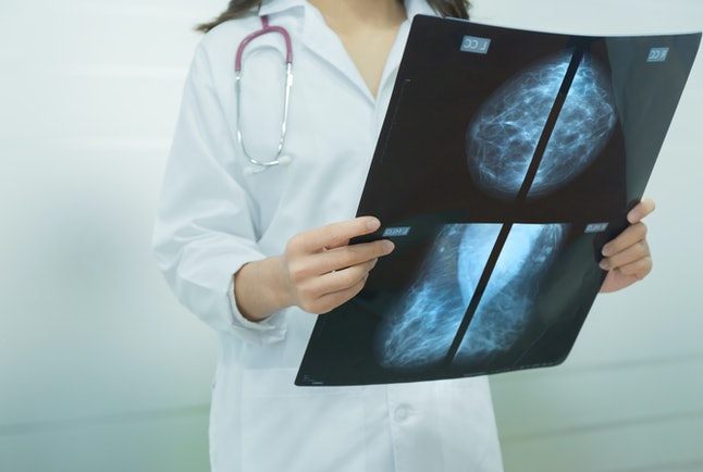 Regular mammograms may help early detection of breast cancers.