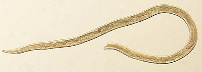 Fotografía de un gusano del ojo Thelazia gulosa. Este parásito infecta los ojos del ganado en el nor...