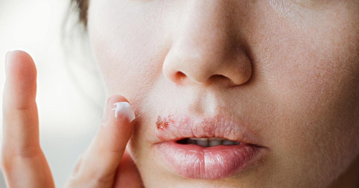 How Do You Prevent Spreading Herpes?