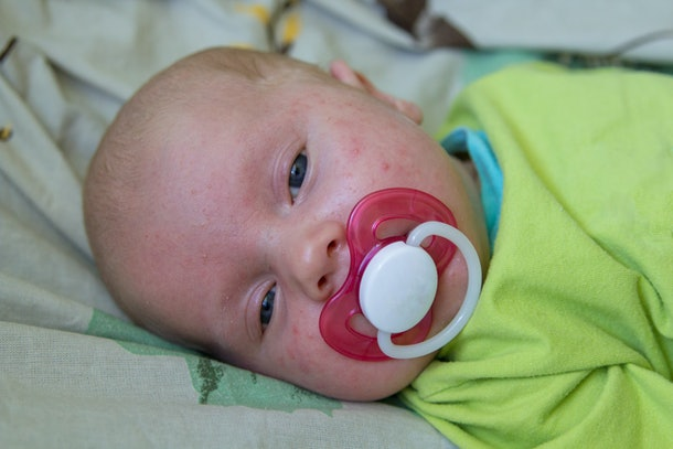 baby in acne,The baby lies on the face of the acne