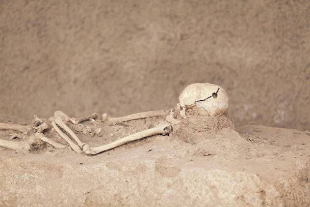 Skeleton. Trepanned skull.