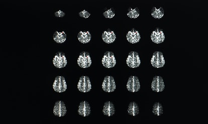 Multiple axial view of magnetic resonance image or MRI of brain with contrast showing brain anatomy,...
