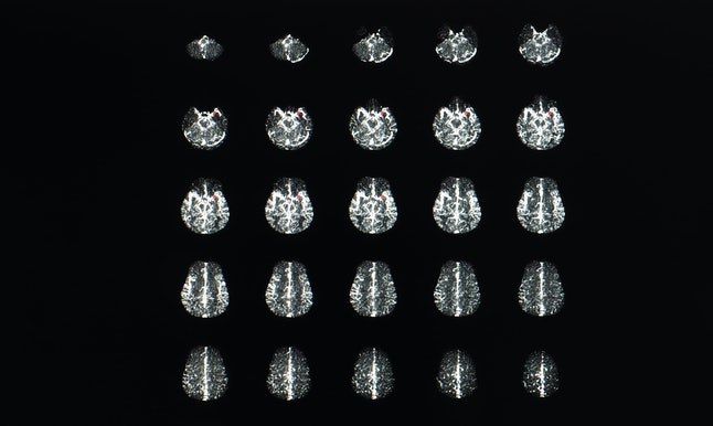 Multiple axial view of magnetic resonance image or MRI of brain with contrast showing brain anatomy, lobes, perfusion and function.
