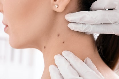 Dermatologist examining patient in clinic, closeup view