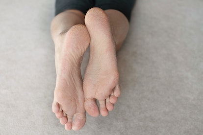Dry skin on female foot and toes. Health problems. Vitamin A and E deficiency