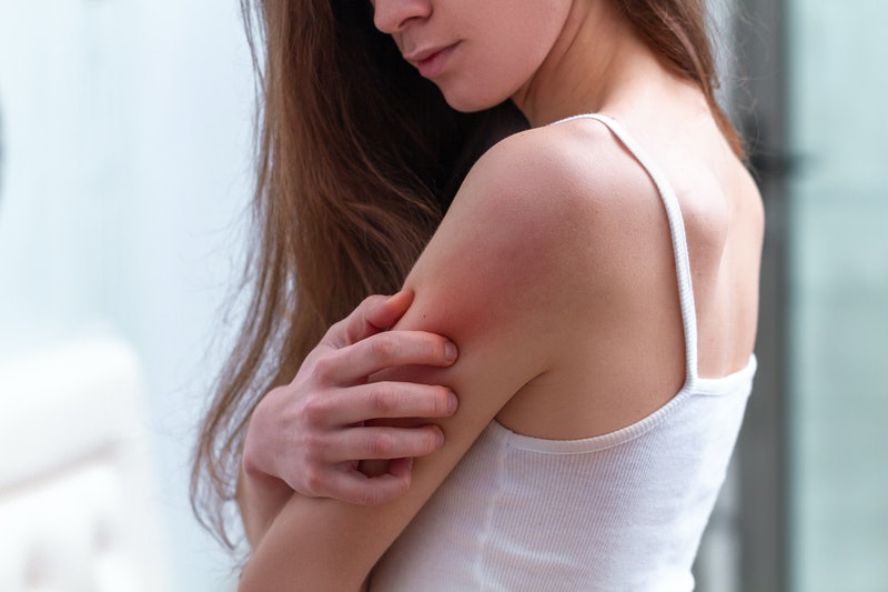 Young woman suffering from itching on her skin and scratching an itchy place. Allergic reaction to insect bites, dermatitis, food, drugs. Health care concept. Allergy rash