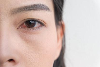 red eye. conjunctivitis or irritation of sensitive eyes.