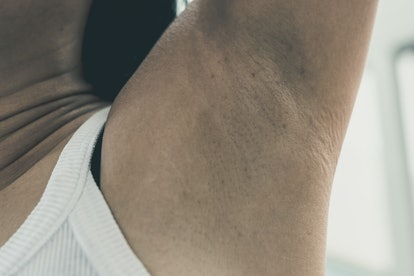 Dirty armpit with smelly underarm problem suffer from hyperhidrosis or excess sweating.