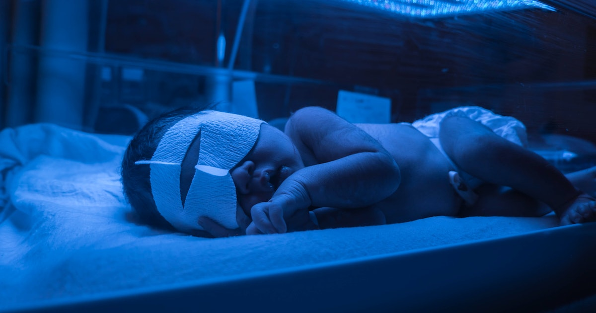 How Long Does Jaundice Last? Not Every Baby Has To Stay Under The Lights