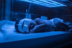 Baby has high level of jaundice, and is put in blue light to reduce jaundice level.