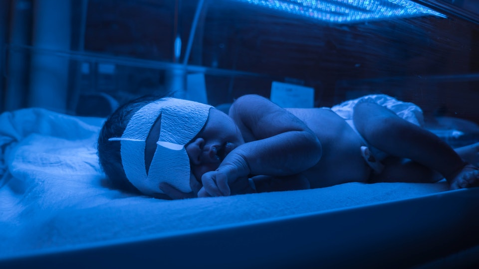 Baby has high level of jaundice, and is put in blue light to reduce jaundice level.