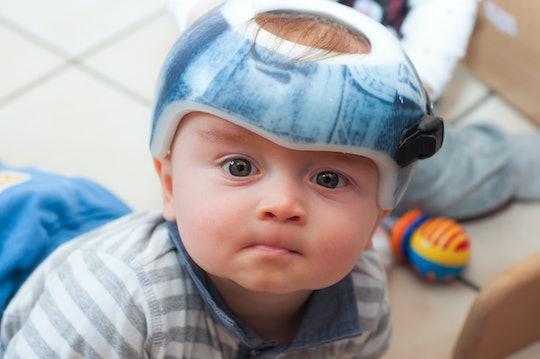 child in an orthopedic helmet