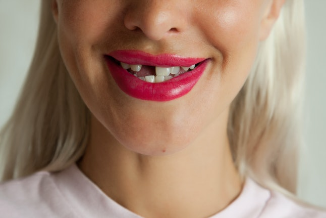 Adult woman with broken front tooth smiling