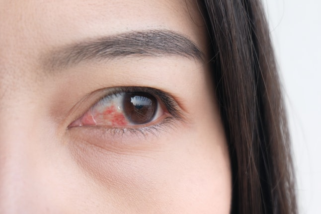 red eye. conjunctivitis or irritation of sensitive eyes.