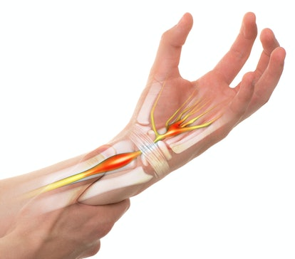 Carpal Tunnel Syndrome - Wrist Pain isolated on white (transparent bones)