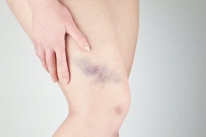 bruises and bruises on the girl's legs