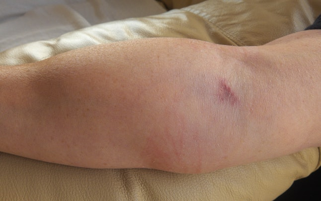 An arm swollen due to medication, administered be a catheter, leaking into the surrounding tissue.