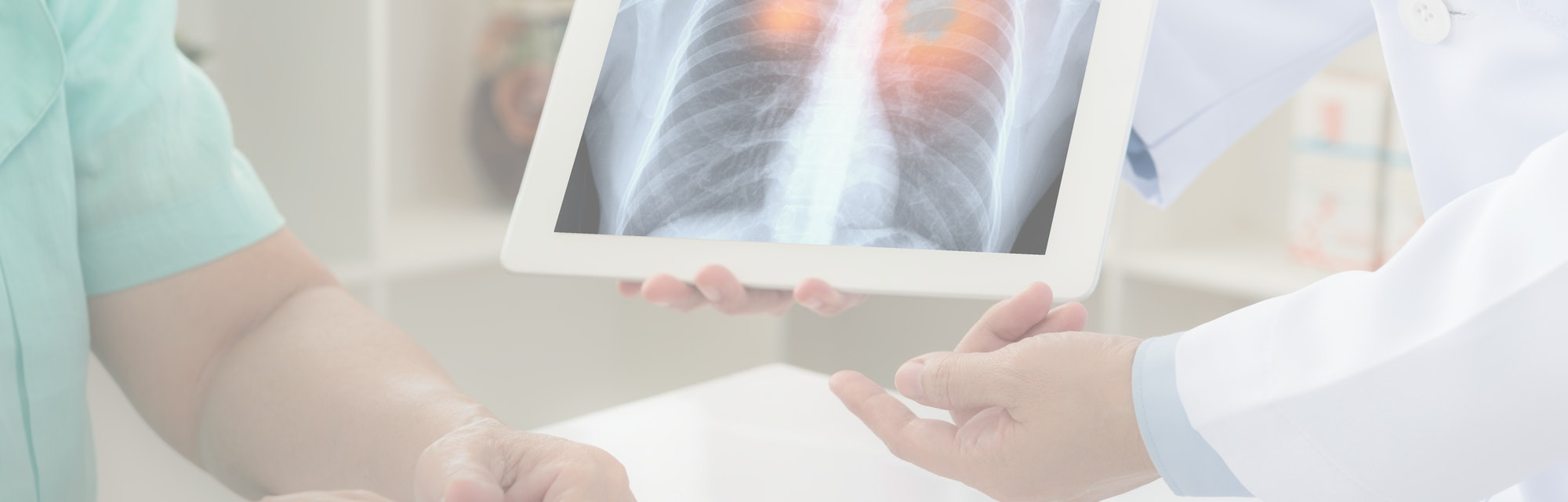 lung cancer concept. doctor explaining results of lung check up from x-ray scan chest on digital tablet screen to patient.