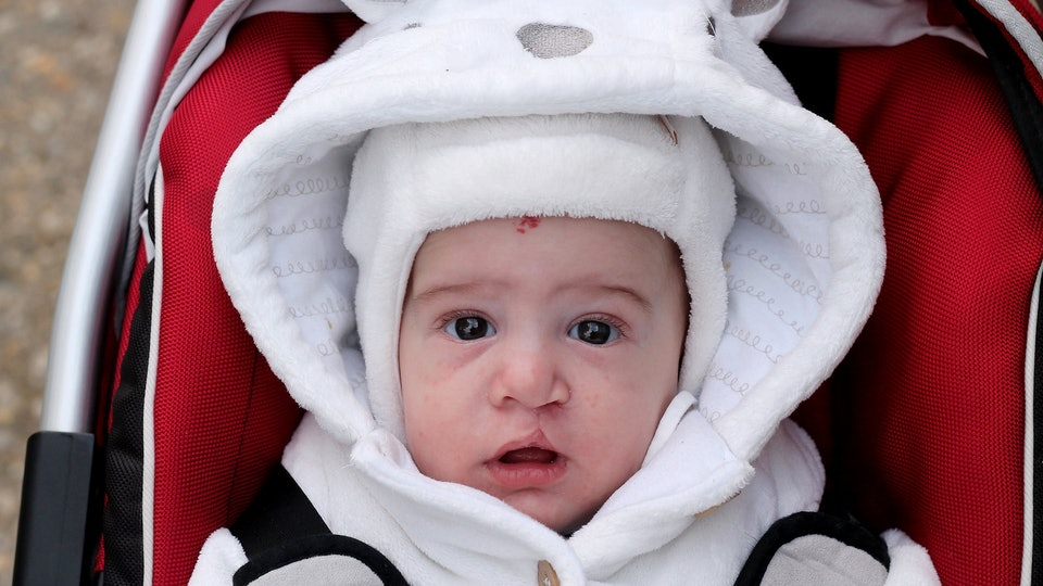 Baby with cleft lip