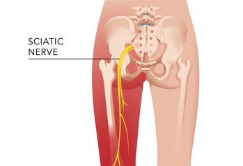 Sciatica - close-up of sciatic nerve and radiant pain pathway