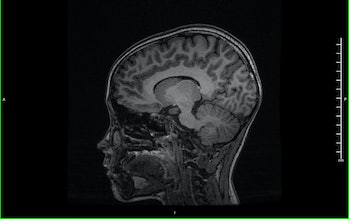 Magnetic resonance image (MRI) of the brain (sagittal view)