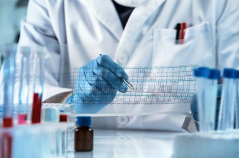 genetic engineering reading the structure chart with the results of the test / doctor analyzing DNA sequence results analysis graph