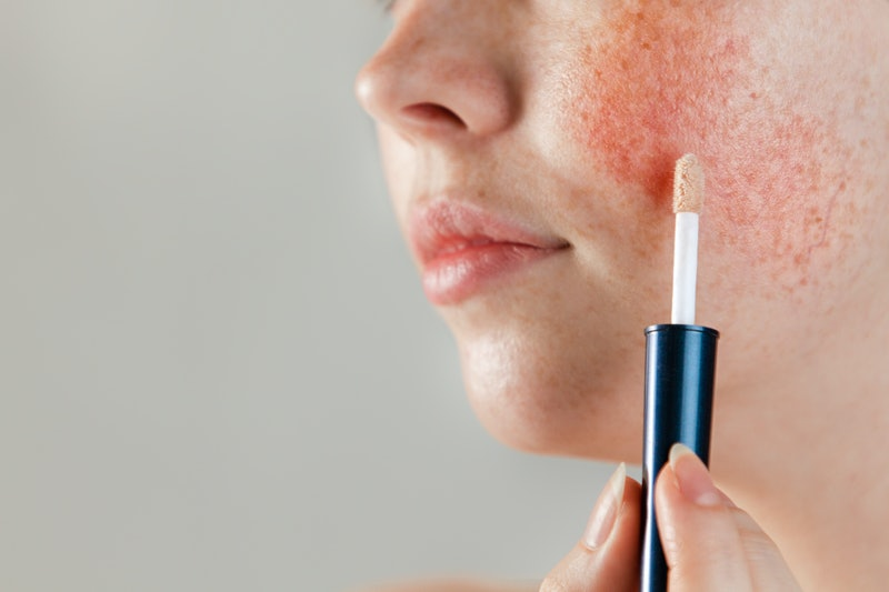 Medicine and cosmetology. Female cheek with rosacea close-up, with cosmetic Foundation on a brush near the skin. Copy space