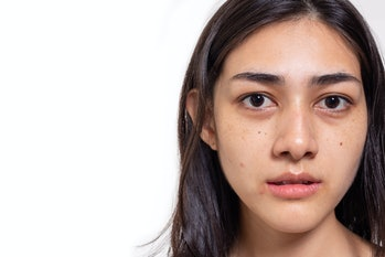Asian woman gets freckles, blemish, pimple and dull skin on her face. Attractive beautiful Asia woman get eye dark circles, She get no makeup on face. She look unhappy. isolated on white, copy space
