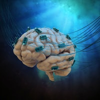 """Plug and play"" brain prosthesis may change how people with paralysis use implants"