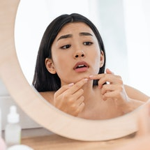 Picking your skin is one of the things dermatologists wish their patients would stop doing.