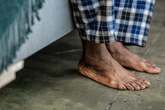 Loss of hair on toes could indicate poor circuation.
