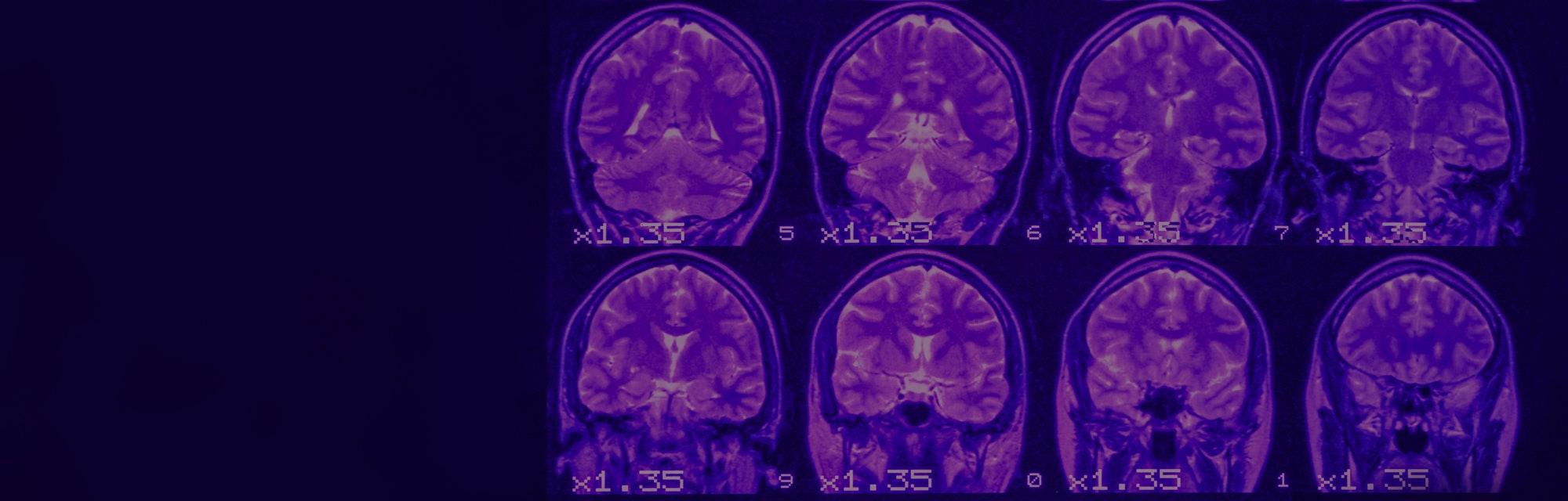 MRI of the brain on a black background with purple  backlight. Left  place for advertising inscripti...